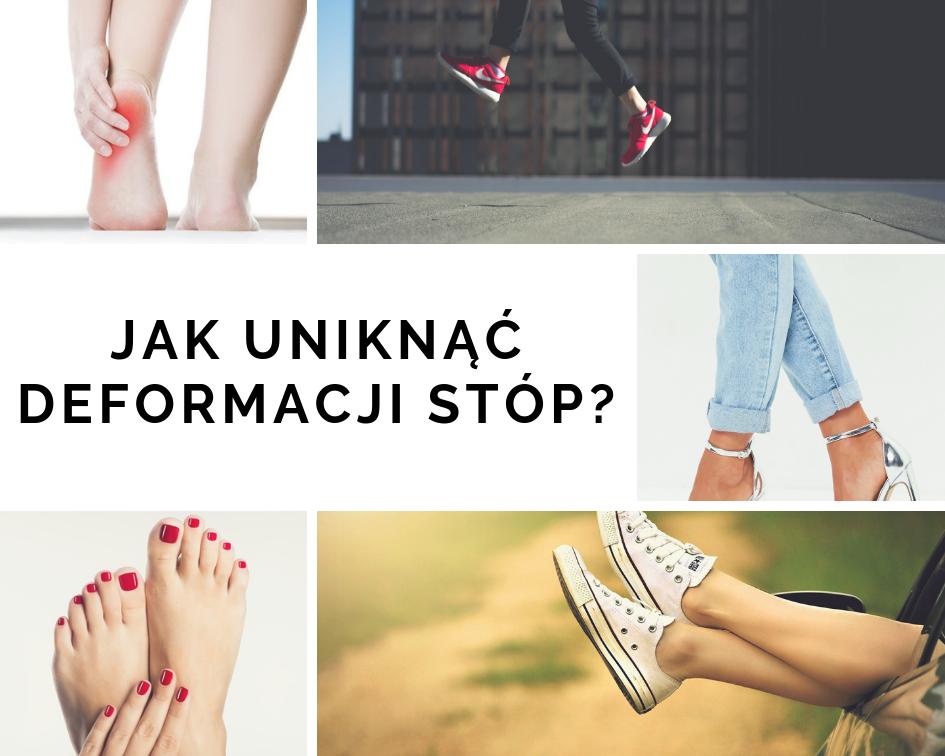 Sposoby na uniknięcie deformacji stóp